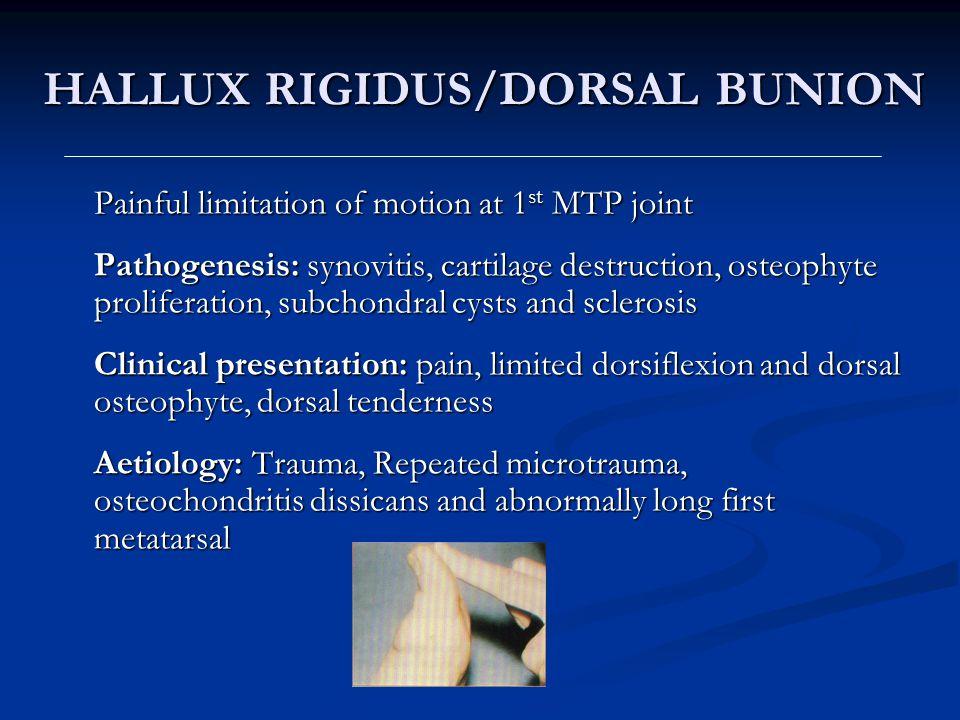 HALLUX RIGIDUS/DORSAL BUNION