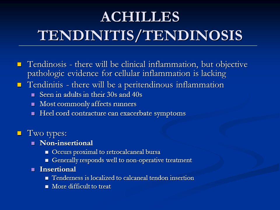 ACHILLES TENDINITIS/TENDINOSIS
