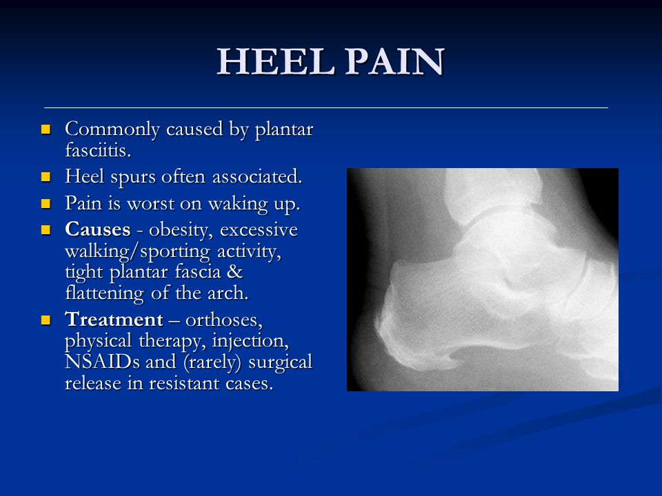 HEEL PAIN Commonly caused by plantar fasciitis.
