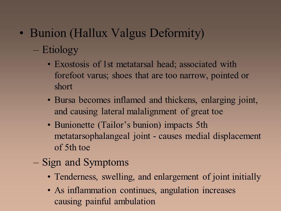 Bunion (Hallux Valgus Deformity)