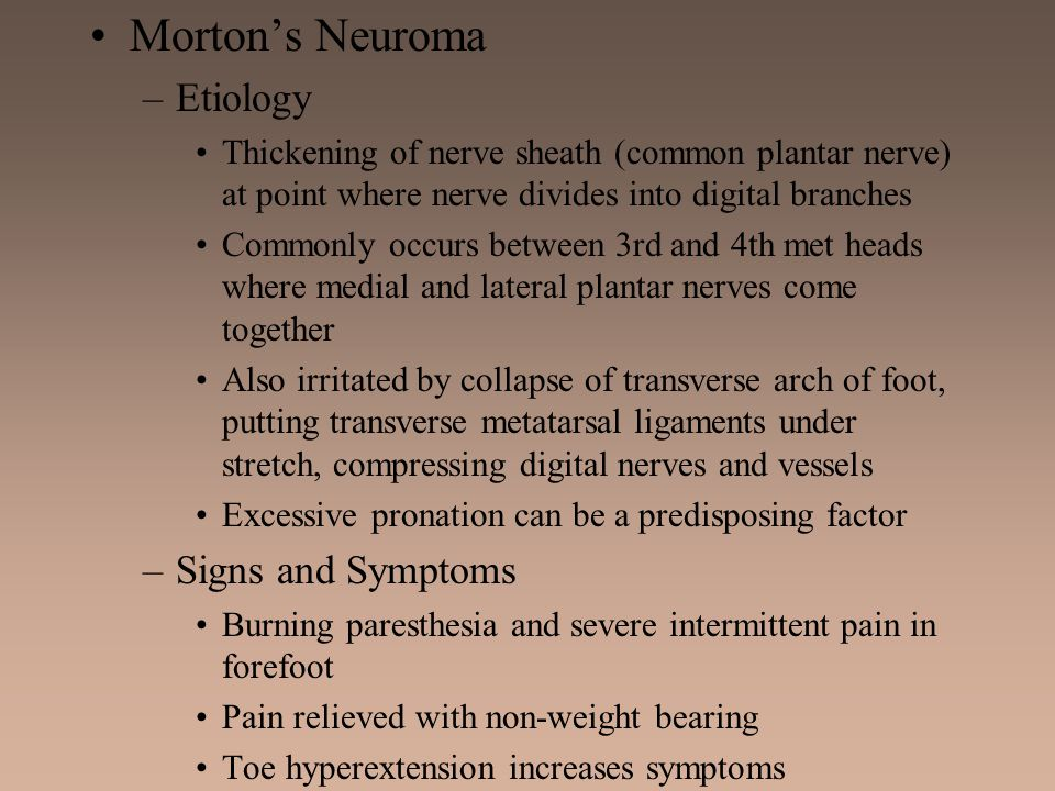 Morton's Neuroma Etiology Signs and Symptoms