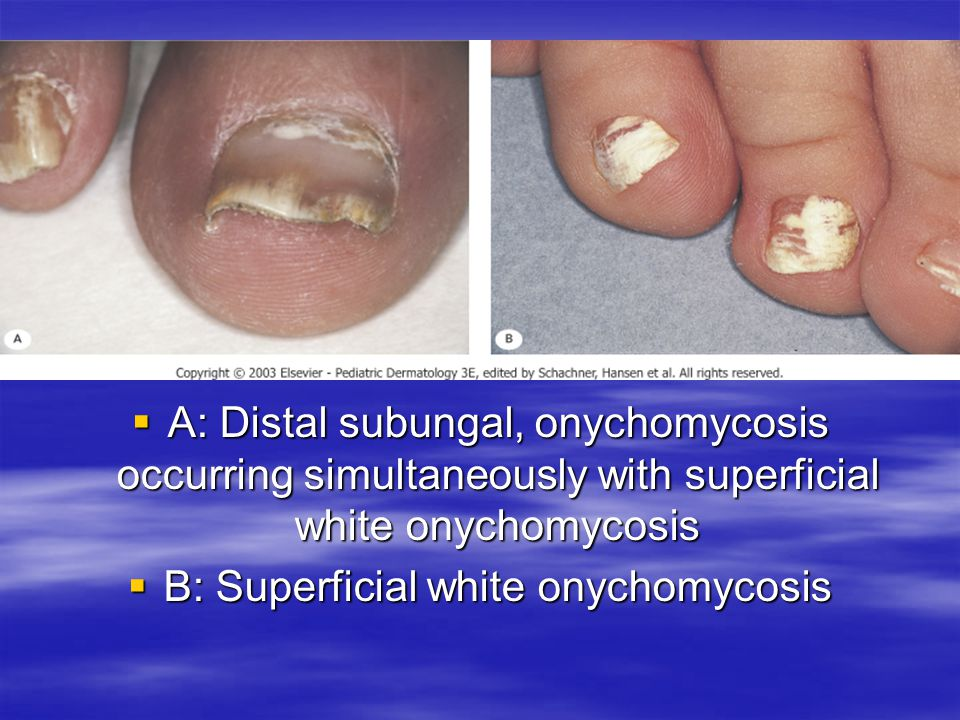 B: Superficial white onychomycosis
