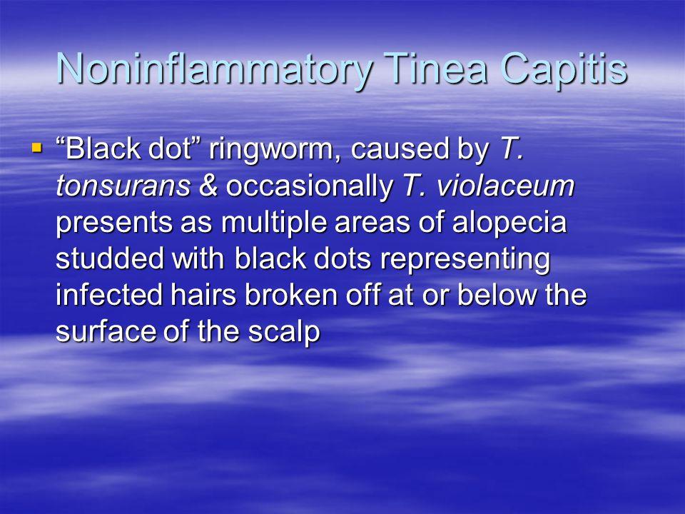 Noninflammatory Tinea Capitis