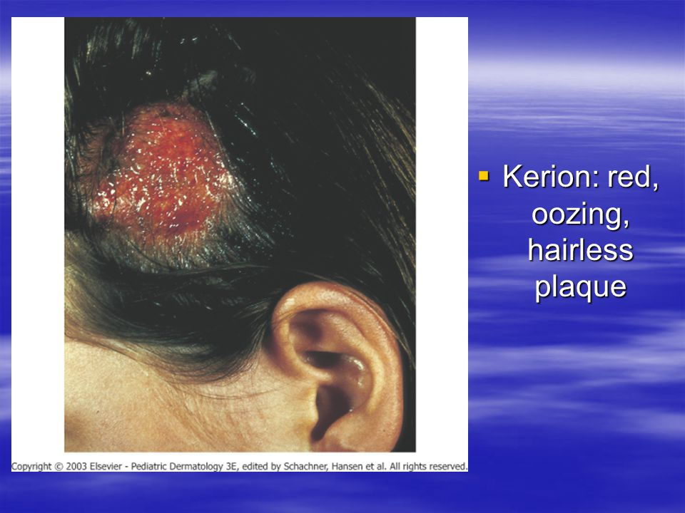 Kerion: red, oozing, hairless plaque