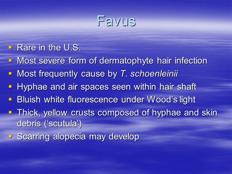 Favus Rare in the U.S. Most severe form of dermatophyte hair infection
