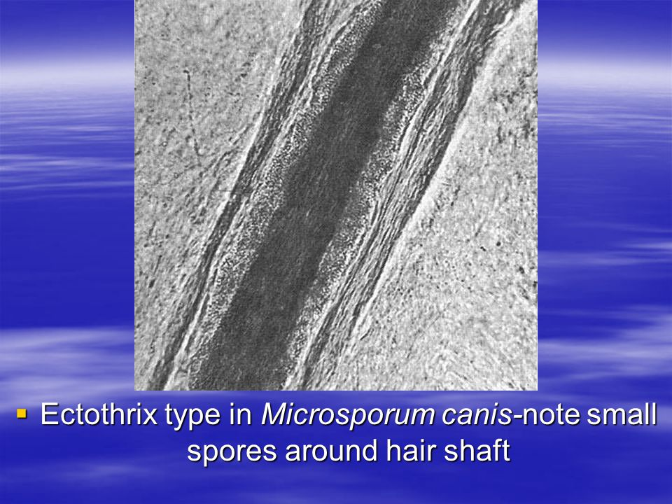 Ectothrix type in Microsporum canis-note small spores around hair shaft