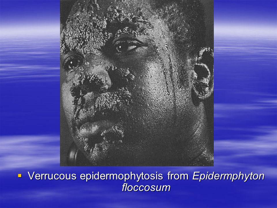 Verrucous epidermophytosis from Epidermphyton floccosum