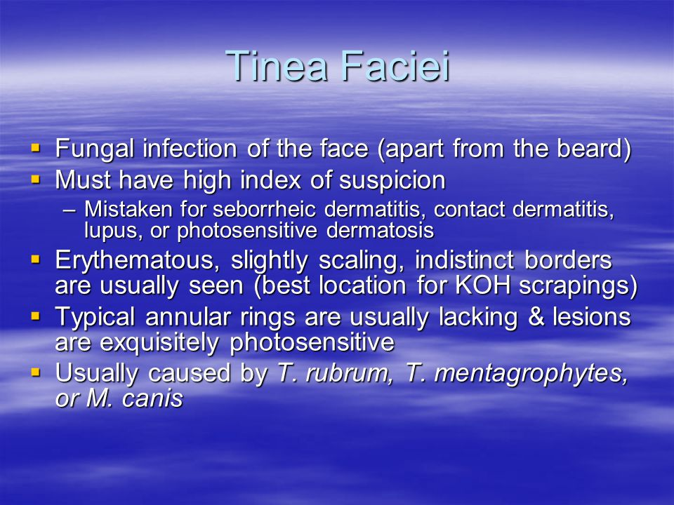 Tinea Faciei Fungal infection of the face (apart from the beard)
