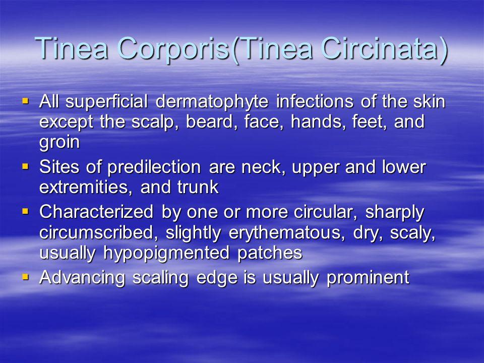 Tinea Corporis(Tinea Circinata)