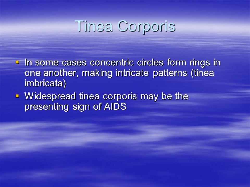 Tinea Corporis In some cases concentric circles form rings in one another, making intricate patterns (tinea imbricata)
