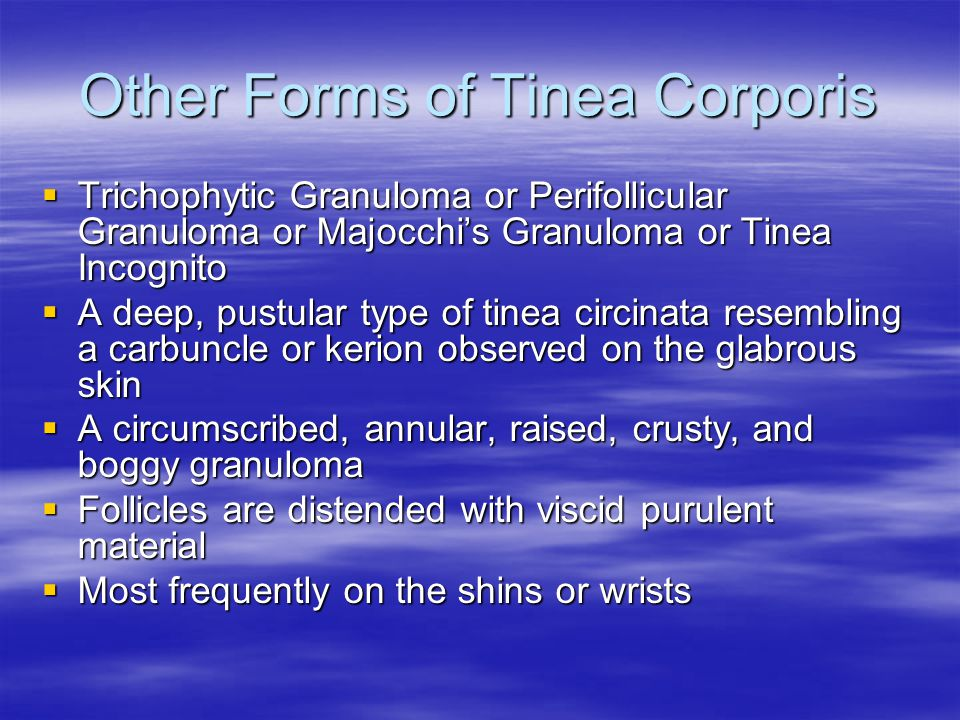 Other Forms of Tinea Corporis
