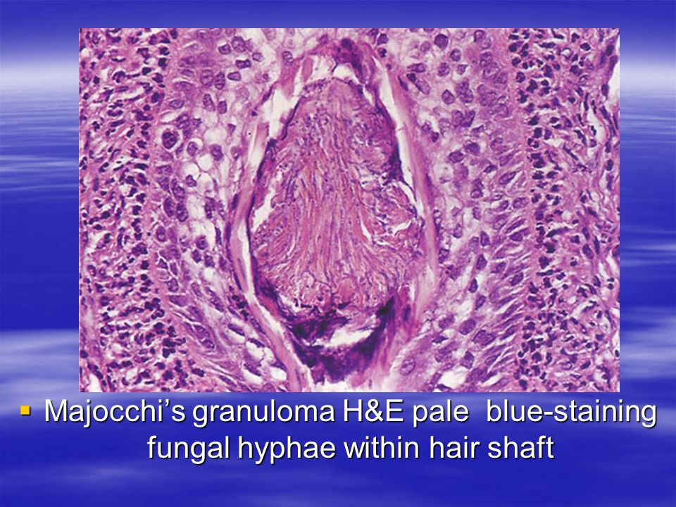Majocchi's granuloma H&E pale blue-staining fungal hyphae within hair shaft
