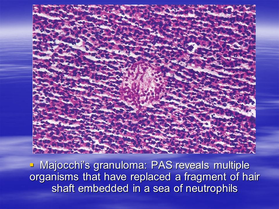 Majocchi's granuloma: PAS reveals multiple organisms that have replaced a fragment of hair shaft embedded in a sea of neutrophils