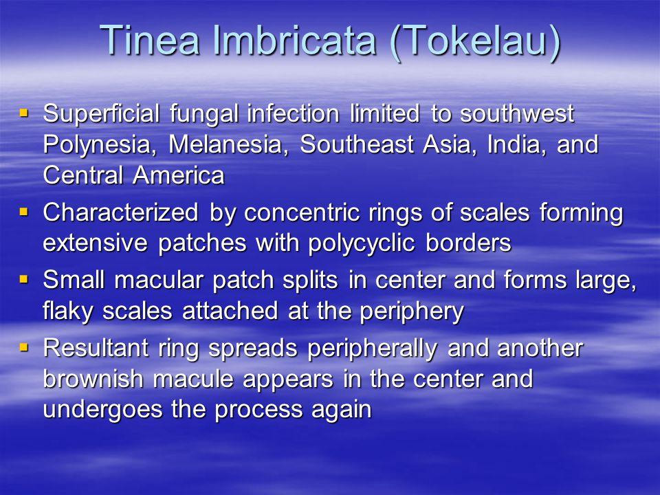 Tinea Imbricata (Tokelau)