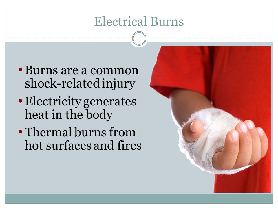 Electrical Burns Burns are a common shock-related injury