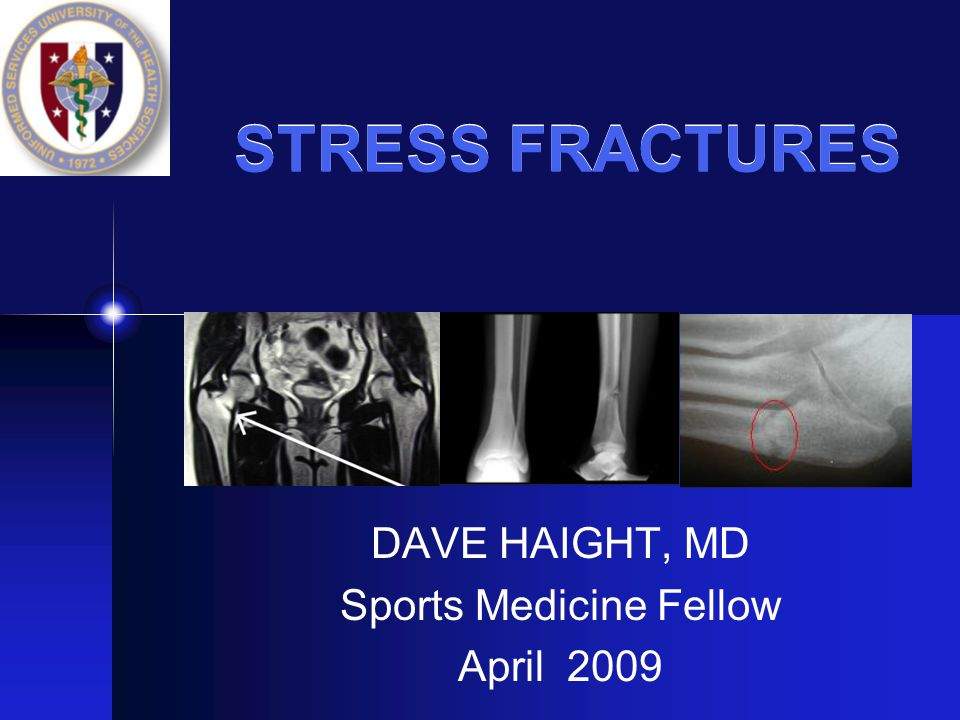 DAVE HAIGHT, MD Sports Medicine Fellow April 2009