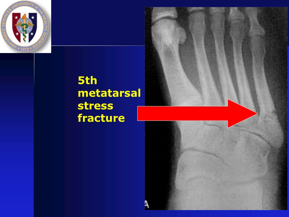 5th metatarsal stress fracture