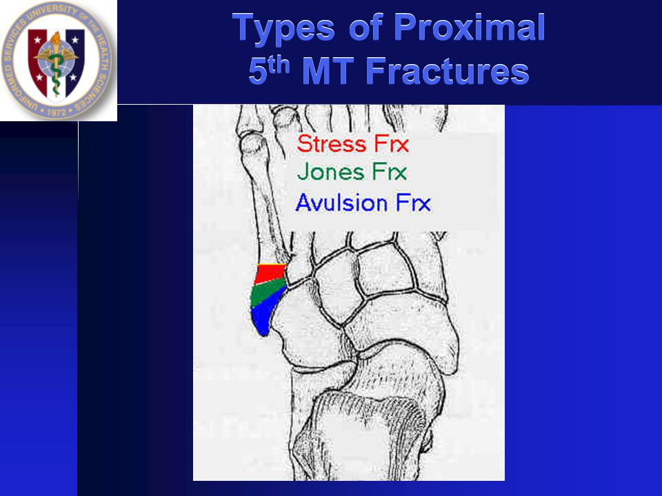 Types of Proximal 5th MT Fractures