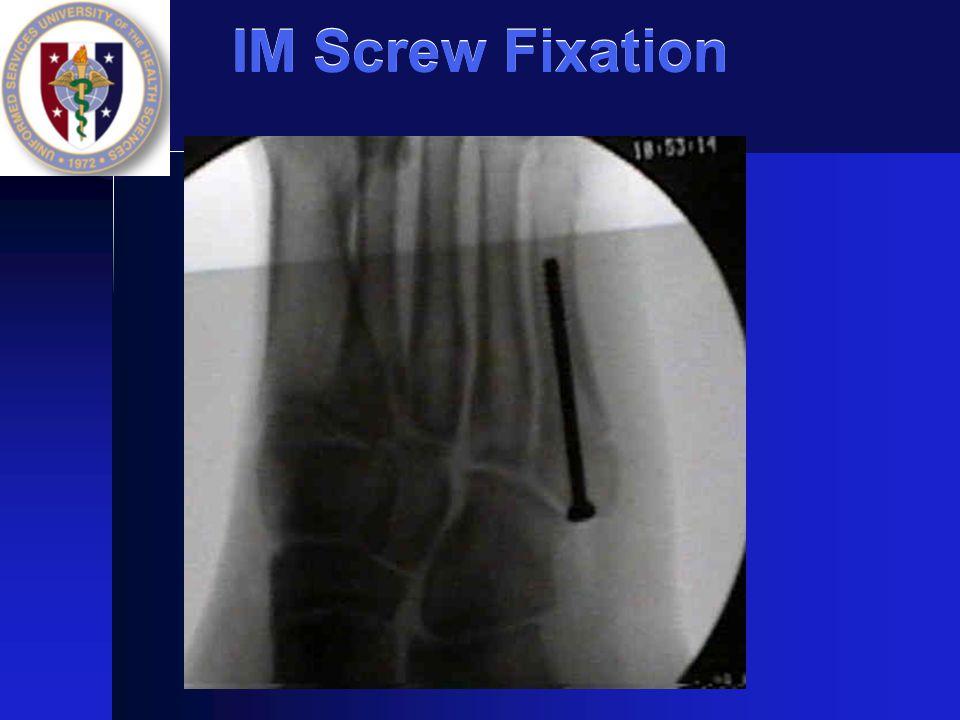 IM Screw Fixation