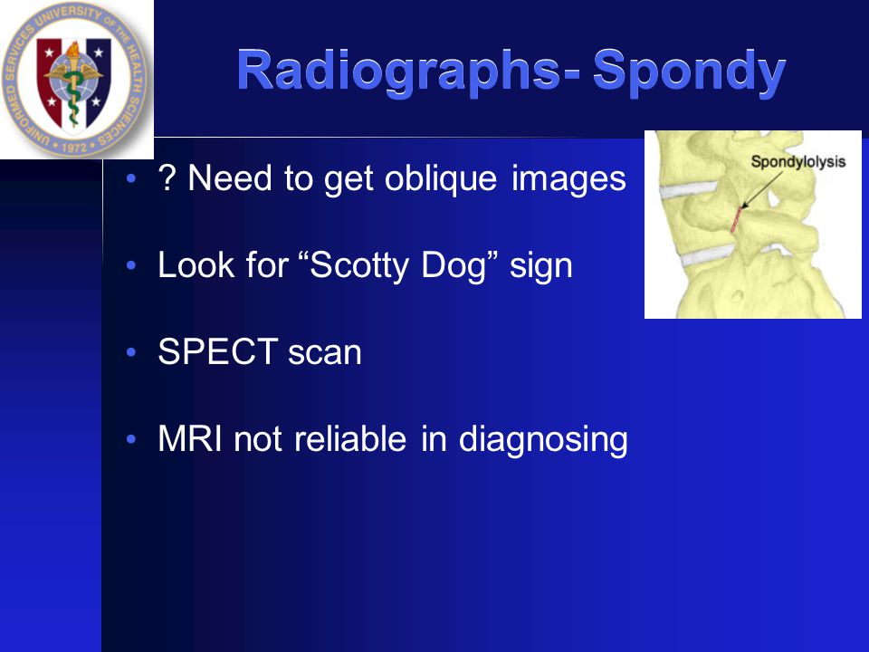 Radiographs- Spondy Need to get oblique images