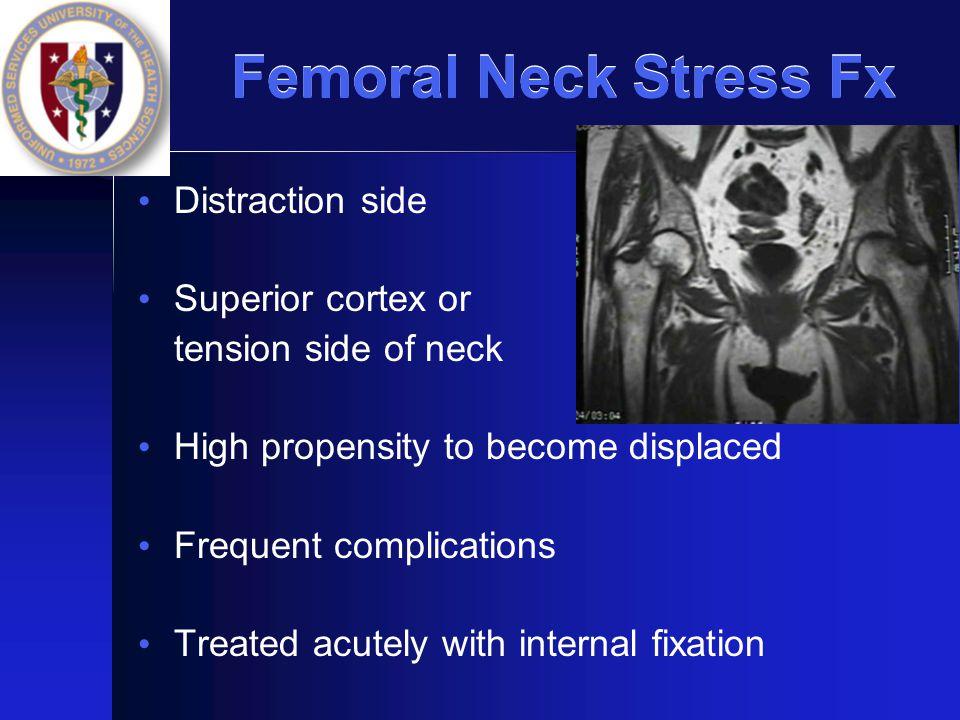 Femoral Neck Stress Fx Distraction side Superior cortex or