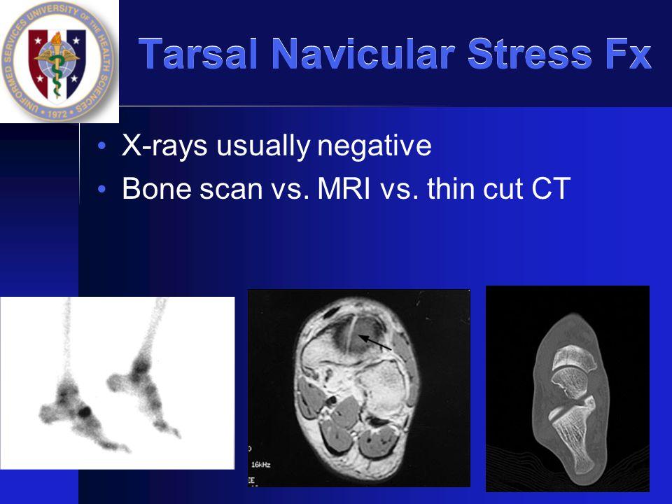 Tarsal Navicular Stress Fx