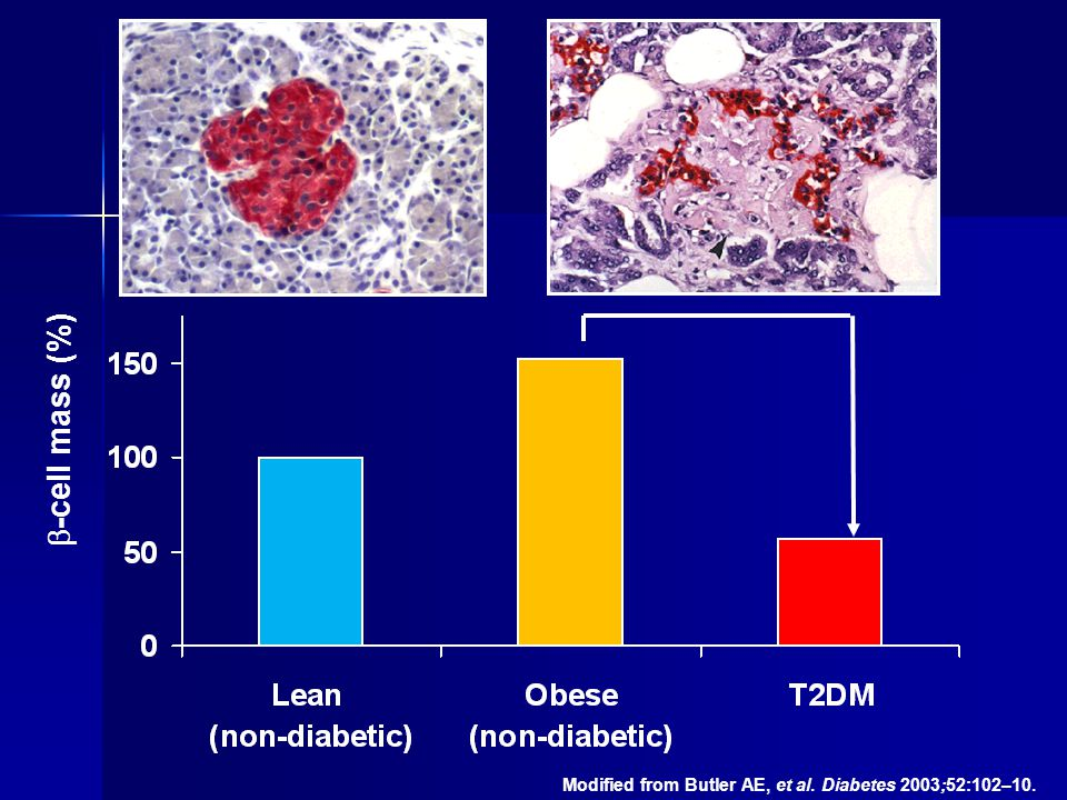 ~65% -cell mass (%) Modified from Butler AE, et al. Diabetes 2003;52:102–10.