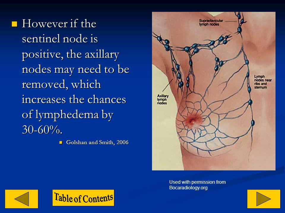 However if the sentinel node is positive, the axillary nodes may need to be removed, which increases the chances of lymphedema by 30-60%.
