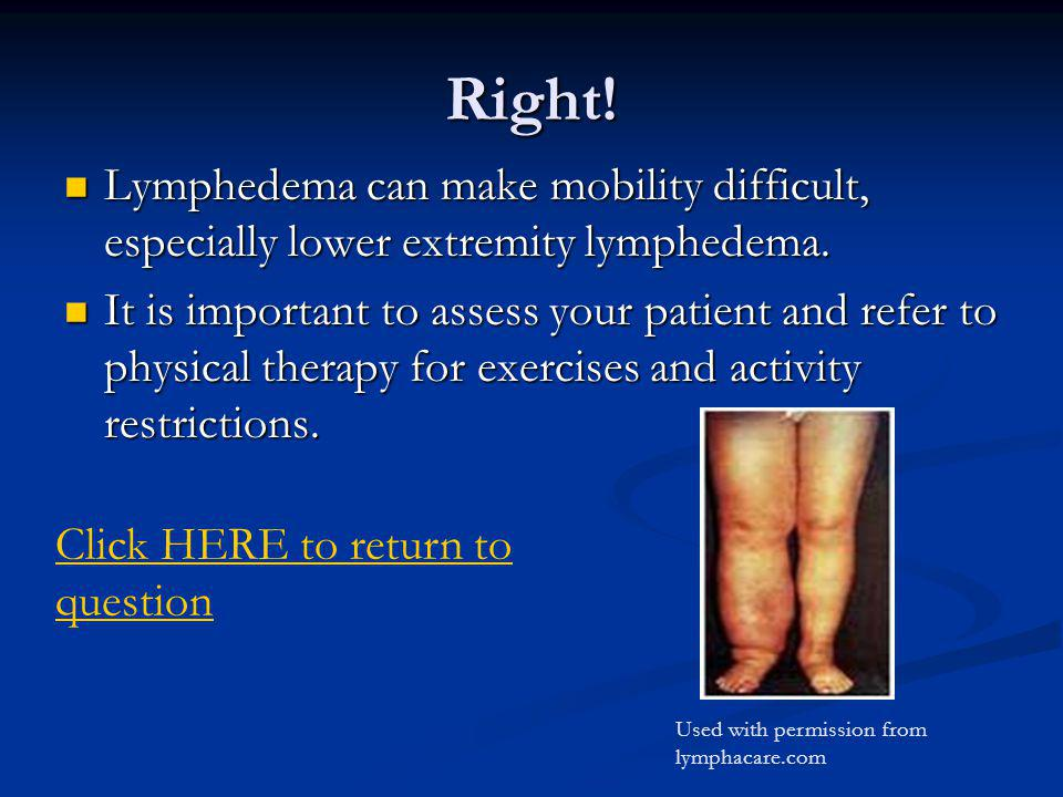 Right! Lymphedema can make mobility difficult, especially lower extremity lymphedema.