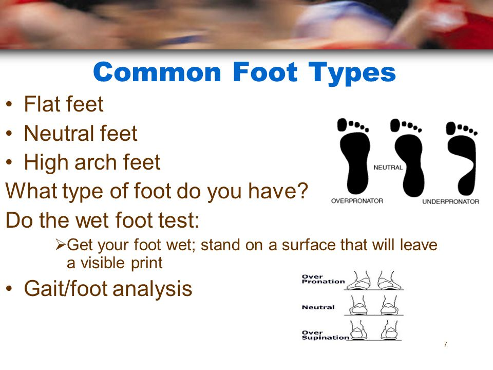 Common Foot Types Flat feet Neutral feet High arch feet