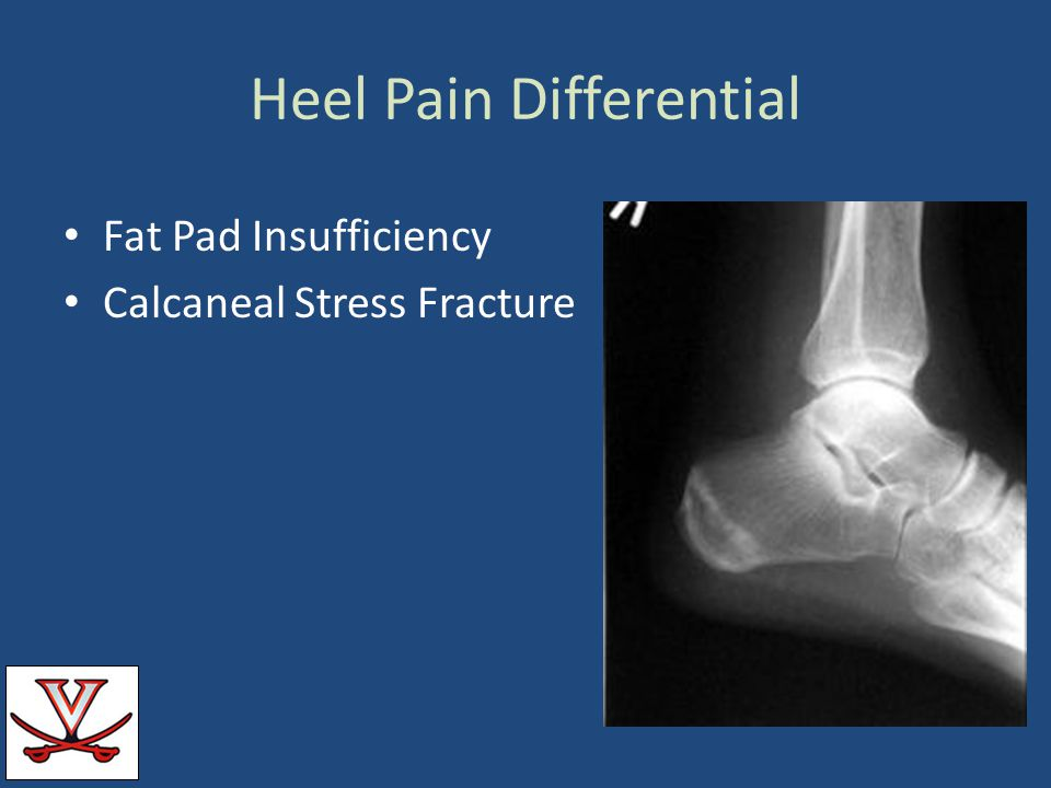 Heel Pain Differential