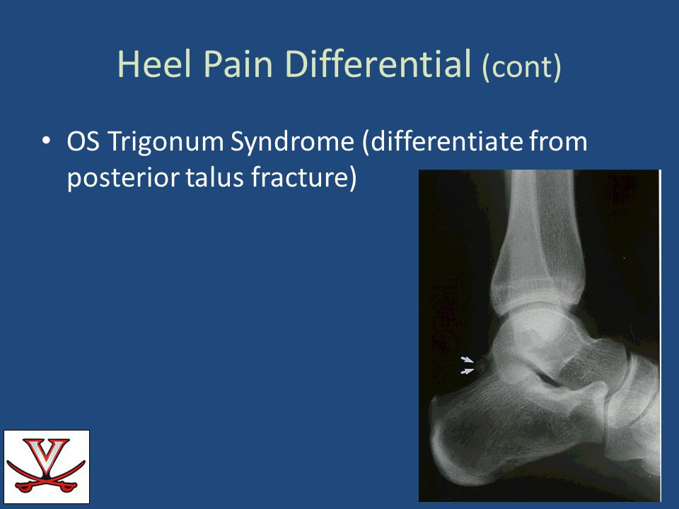 Heel Pain Differential (cont)
