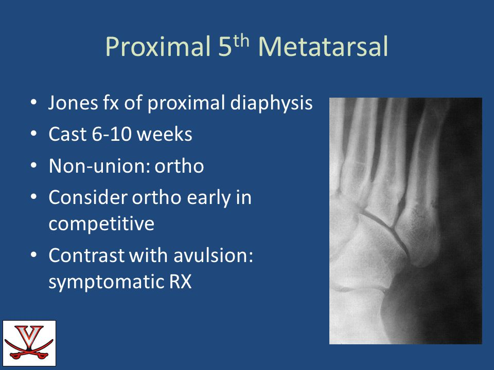 Proximal 5th Metatarsal