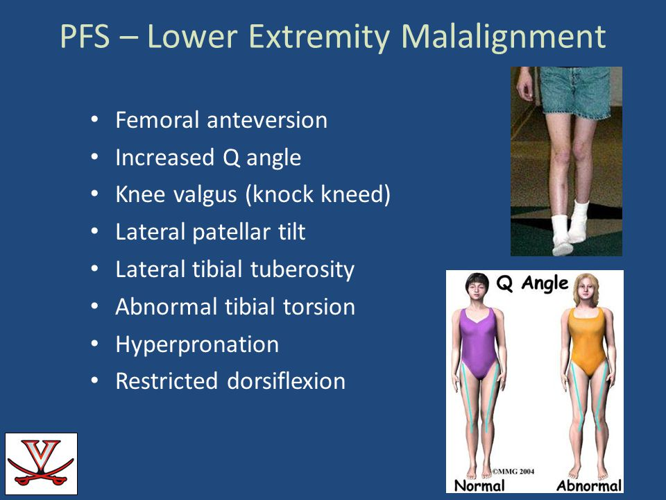 PFS – Lower Extremity Malalignment