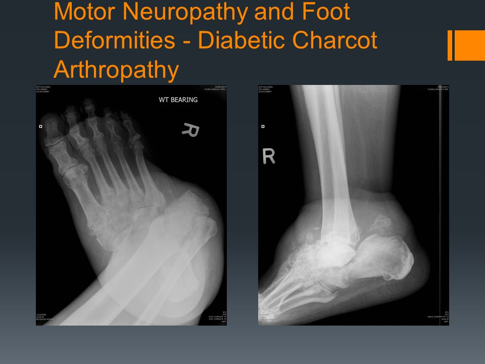 Motor Neuropathy and Foot Deformities - Diabetic Charcot Arthropathy