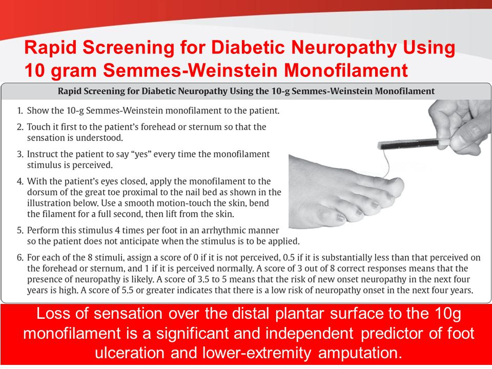 Rapid Screening for Diabetic Neuropathy Using 10 gram Semmes-Weinstein Monofilament