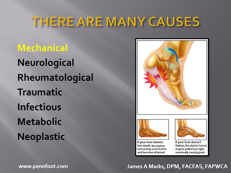 THERE ARE MANY CAUSES Mechanical Neurological Rheumatological Traumatic Infectious Metabolic Neoplastic