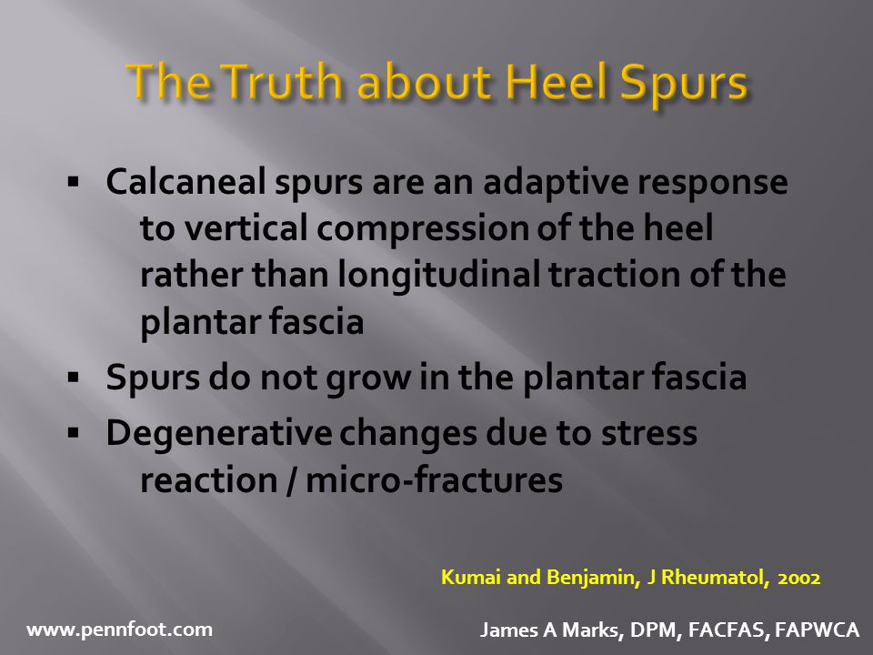 The Truth about Heel Spurs