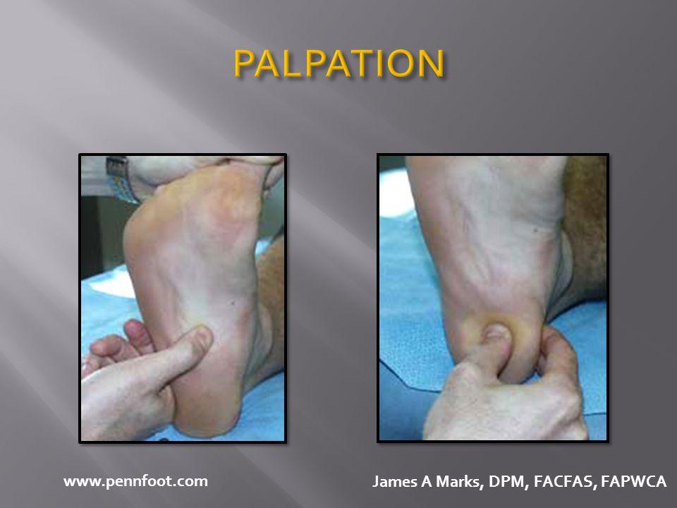 PALPATION www.pennfoot.com James A Marks, DPM, FACFAS, FAPWCA
