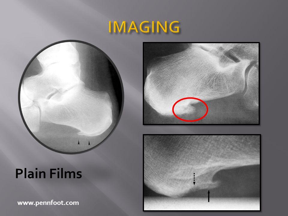 IMAGING Plain Films www.pennfoot.com