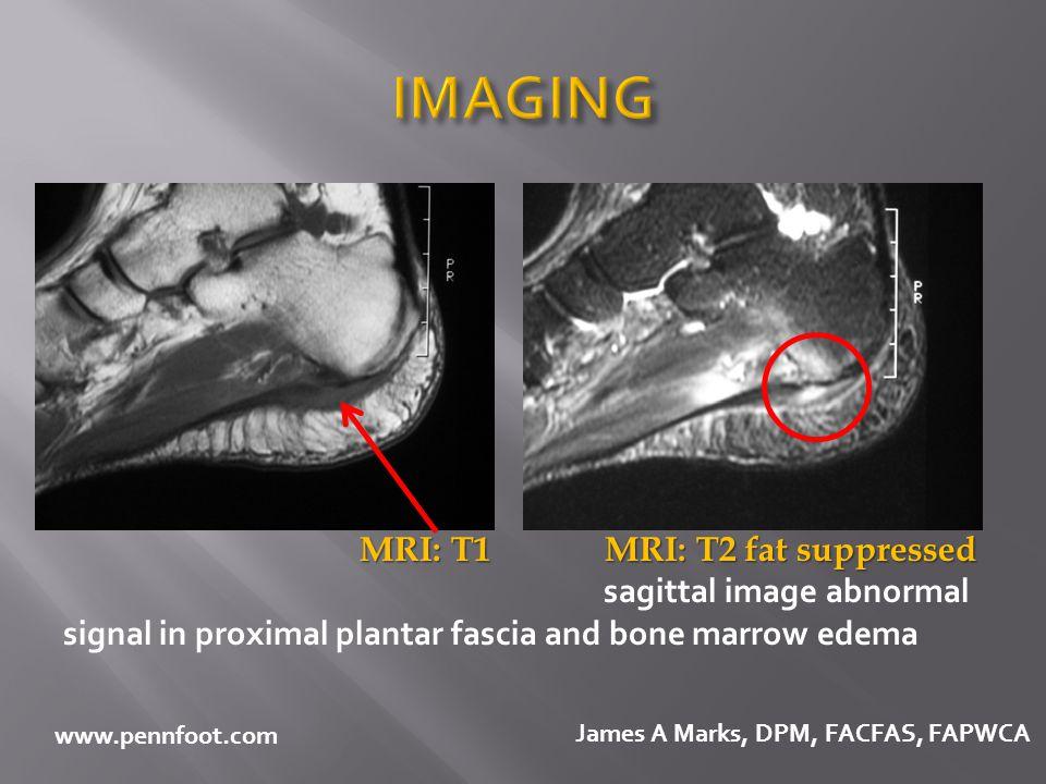 IMAGING MRI: T1 MRI: T2 fat suppressed