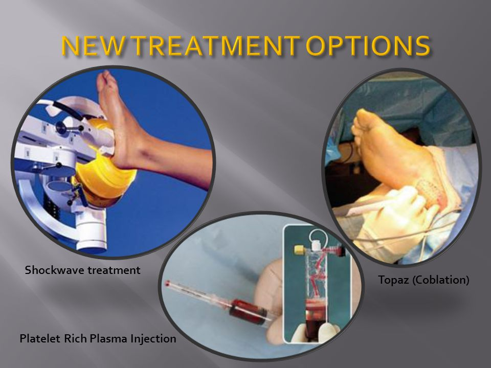 NEW TREATMENT OPTIONS Shockwave treatment Topaz (Coblation)