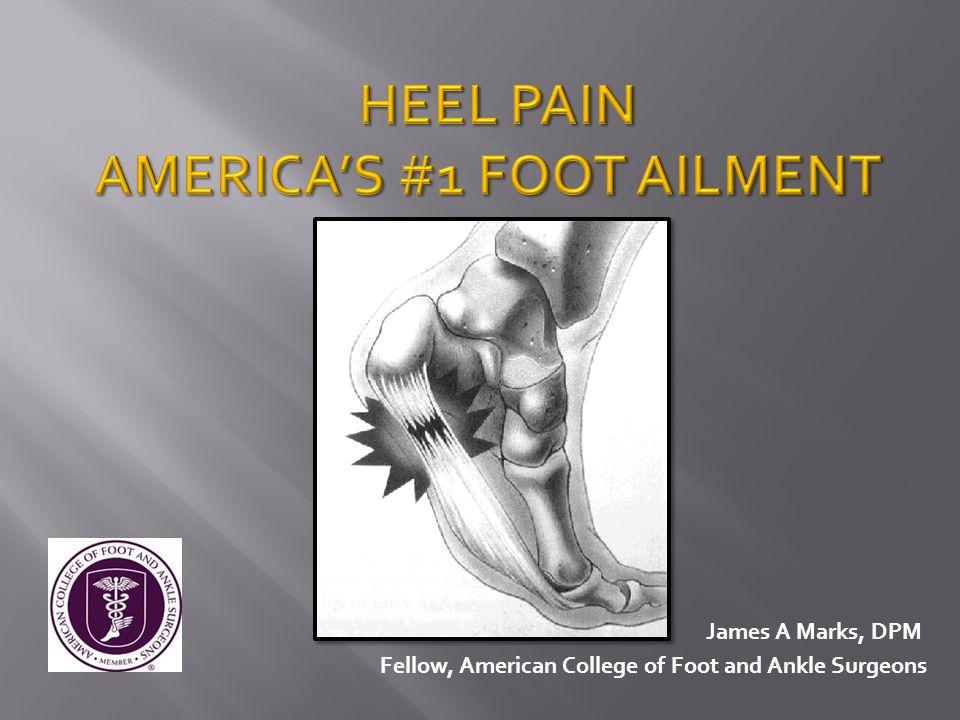 AMERICA'S #1 FOOT AILMENT