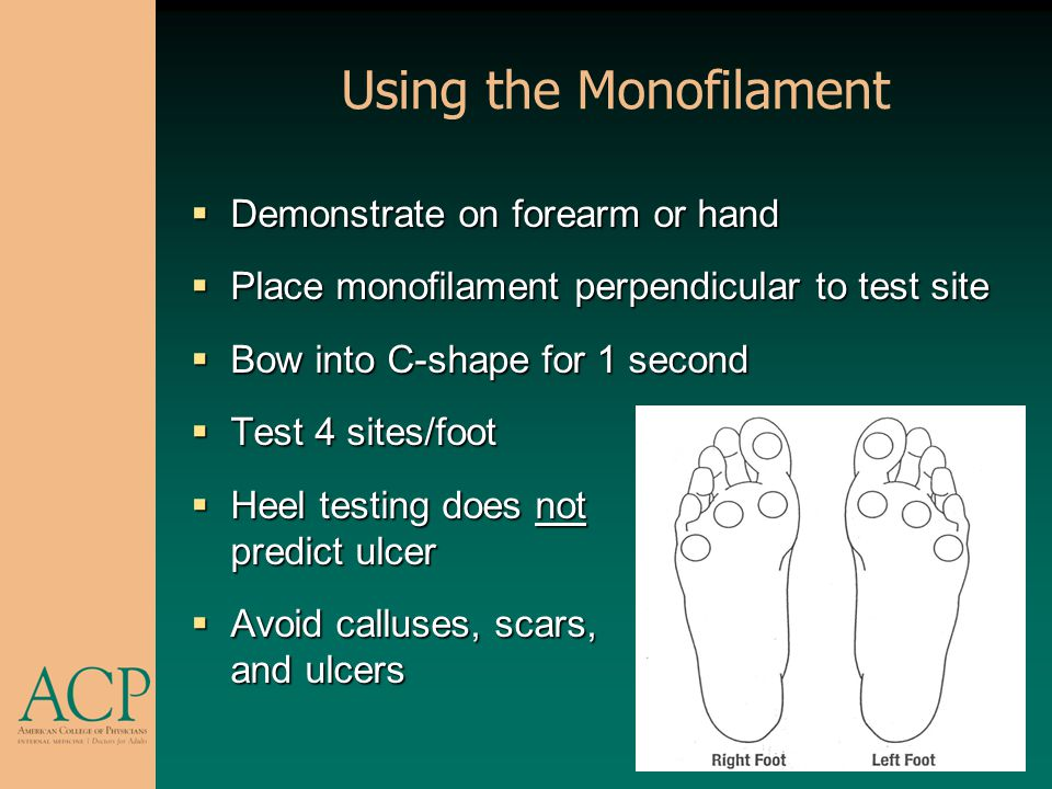 Using the Monofilament