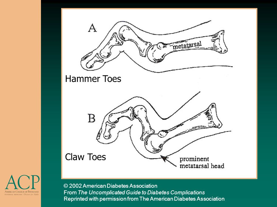 Hammer Toes Claw Toes © 2002 American Diabetes Association