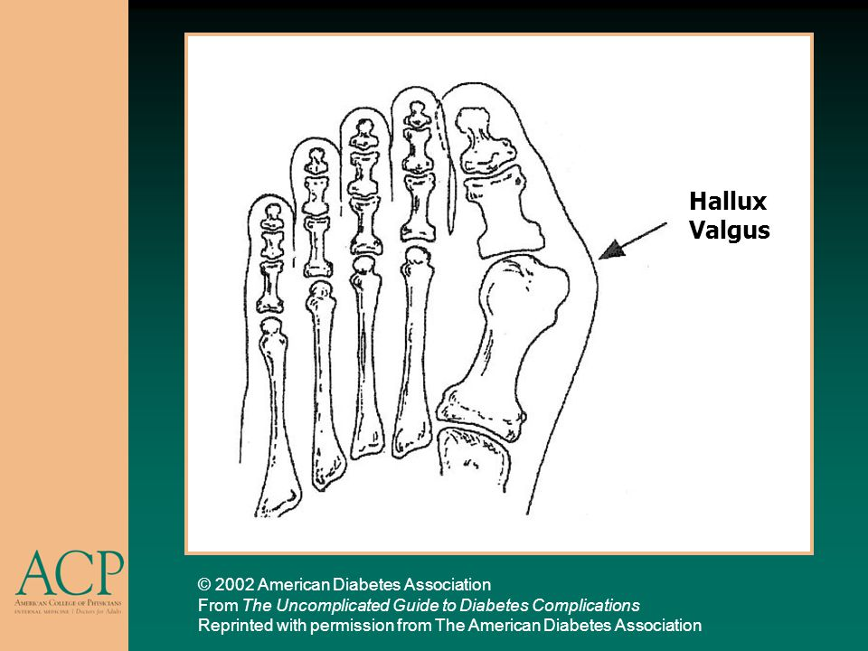 Hallux Valgus © 2002 American Diabetes Association