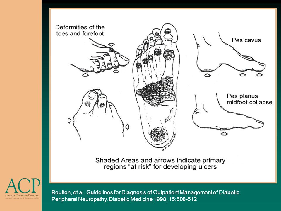 The pes cavus deformity – a high plantar arch – leads to areas of high pressure over the heel, the metatarsal heads, and the plantar surface of the toes.