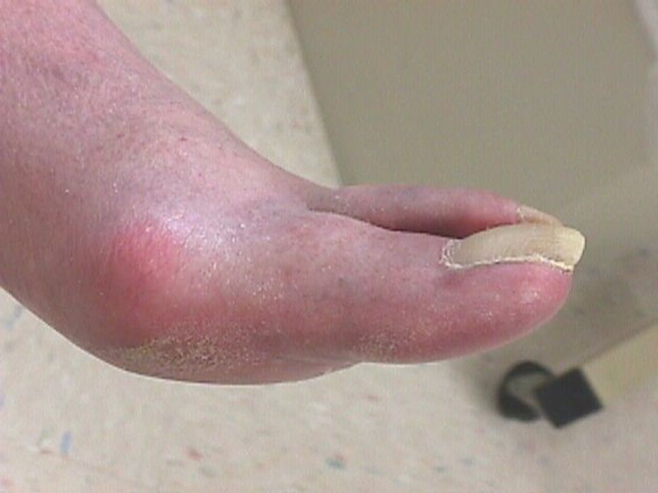 Areas of erythema that persist after removal of the shoe are an indication of excessive pressure from inappropriately fitted shoe gear.