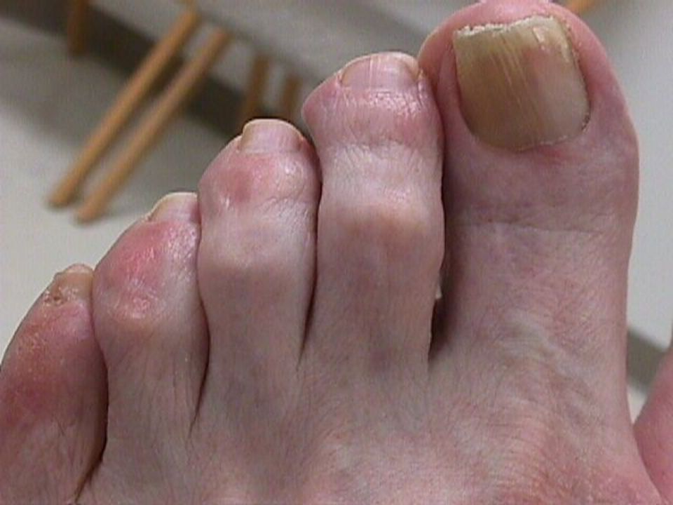 Early hammer and claw-toe deformities.
