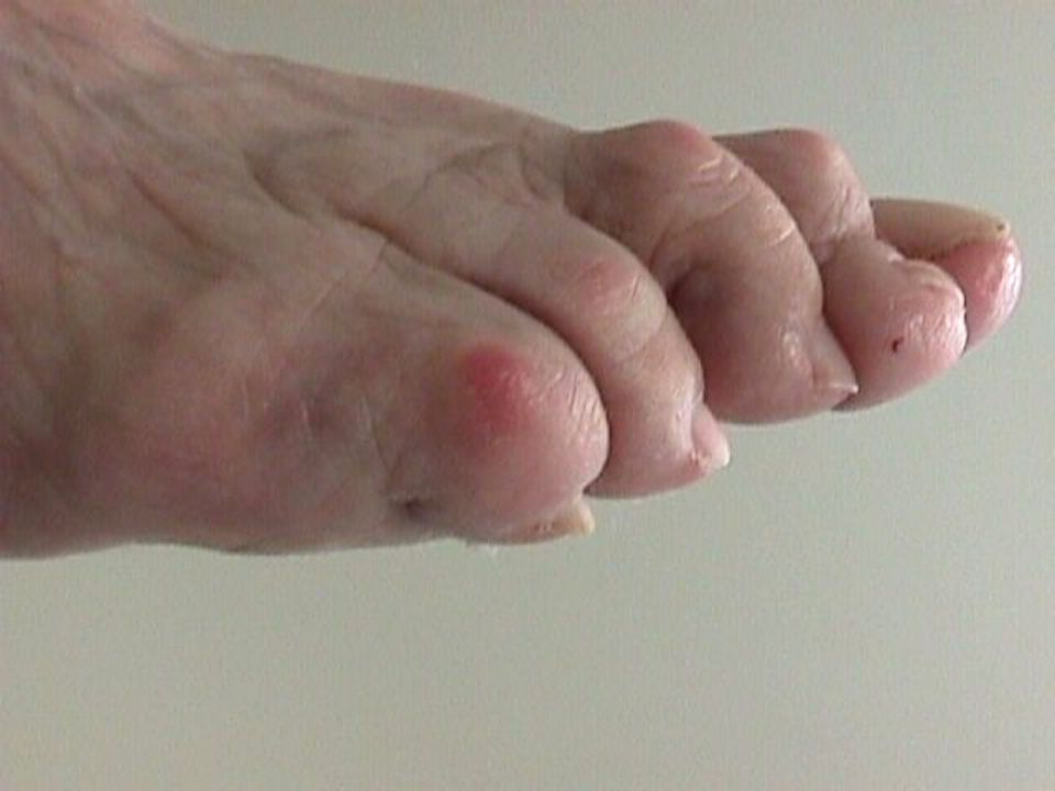 Severe hammer and claw-toe deformities.